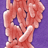 Salmonella Typhimurium (Photo Credit: Janice Haney Carr)